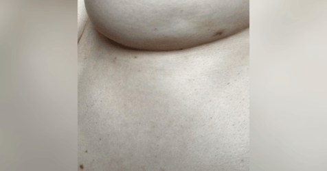 Viral Post Highlights Rare Sign of Breast Cancer Women Should Know