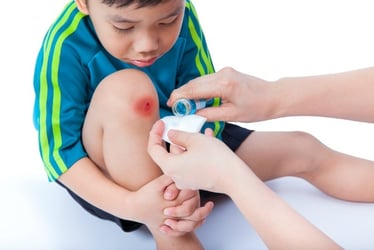Basic First Aid Tips All Parents Should Know