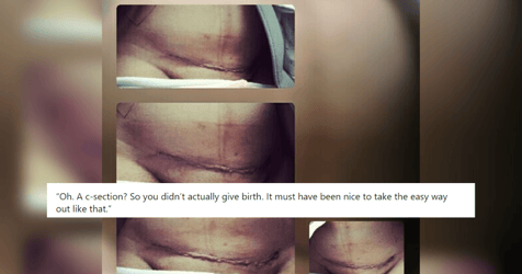 """Mum's Viral Post Slams Notion That C-sections Are """"Easy Way Out"""""""