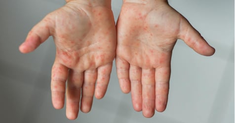 What All Parents Need to Know About Hand Foot Mouth Disease