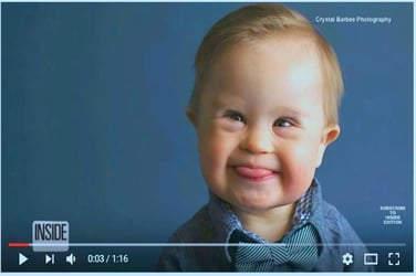 Toddler gets featured after being rejected for having Down Syndrome!