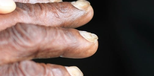 5 Nail symptoms that you should never ignore