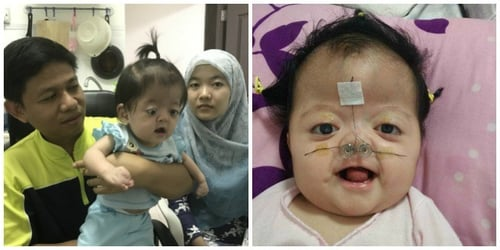 Baby with Apert Syndrome in Singapore needs HELP for treatment!