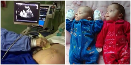 """""""Miracle"""" twins born to brain dead mum kept alive on life support!"""
