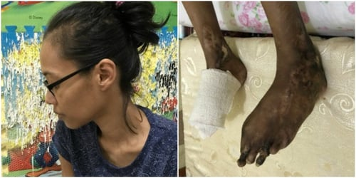 Single mum with Buerger's disease in Singapore badly in need of help