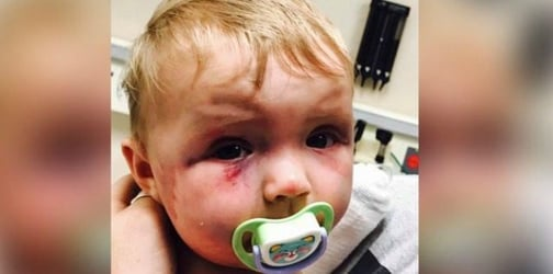 Mum bashes baby girl but AVOIDS going to jail. Why?