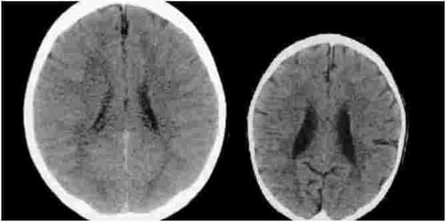 Effect of Abuse on a Child's Brain: These Images Will Shock You!