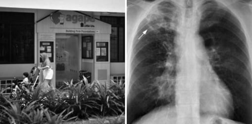 TB in Singapore: All kids at Sengkang East kindergarten tested for TB after staff tested positive