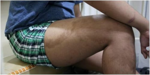 Singapore maid scalds boy with hot oil after argument