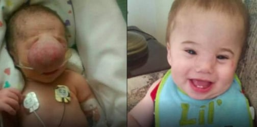 Baby born with severe birth defect is now all-smiles after surgery!