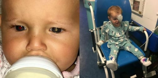 Mum's Facebook post helps save the life of a toddler with eye cancer