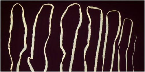 Tapeworm infection in Singapore: 2.8 m tapeworm found in man with no symptoms