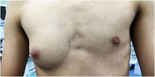 Boy Grows Breasts, Showing Hidden Dangers of Junk Food to Our Kids