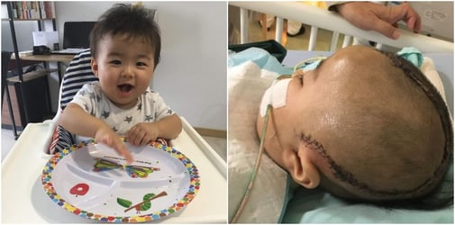 Brain dead baby in Singapore wakes up, now needs support to survive