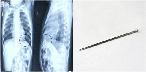 Needle Found in Toddler's Heart During a Check for Chronic Cough