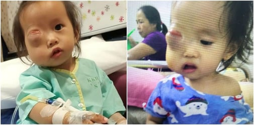 Baby with sarcoma needs urgent surgery to save her right eye