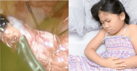 How Do You Know if Your Child Has Worms: Signs, Symptoms and Treatment
