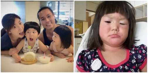 Andie Chen and Kate Pang's daughter has swollen face after allergic reaction