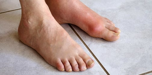 The One Major Symptom of Gout You Shouldn't Ignore