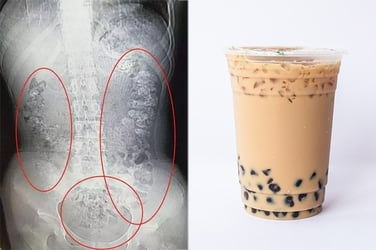 Doctor shocked find hundreds of tapioca pearls in 14-year-old girl's stomach
