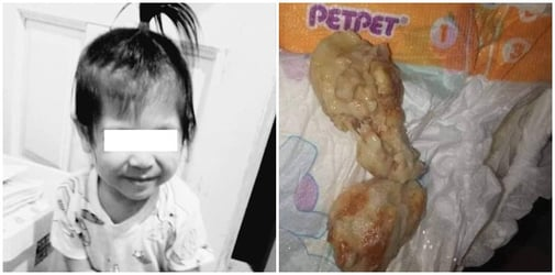 Tragedy as 2-year-old girl dies after choking on bread