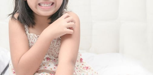 Everything Parents Need To Know About Eczema In Kids