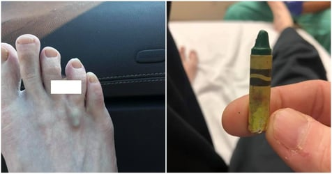 Crayon Pierced Between A Father's Toes Is A Warning For Both Parents And Kids At Home