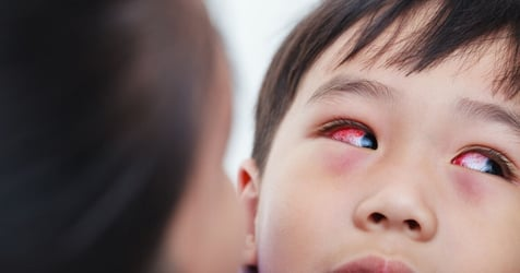 Conjunctivitis Could Be Rare Symptom of COVID-19, Says Study