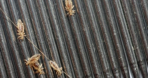 12-year-old Girl Dies After Severe Head Lice Infestation Causes Heart Attack, Parents Charged