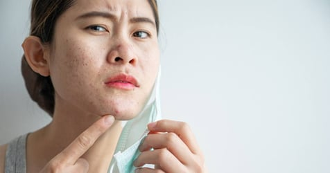 """Bad Acne or """"Maskne"""" During the Pandemic?"""