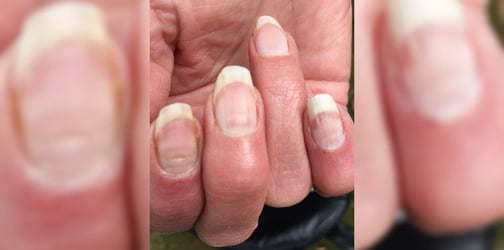 Do You Have COVID Nails? Here's What You Must Know About Them