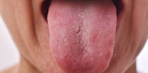 Does Your Child Have A White Tongue? Here's What It Says About His Health