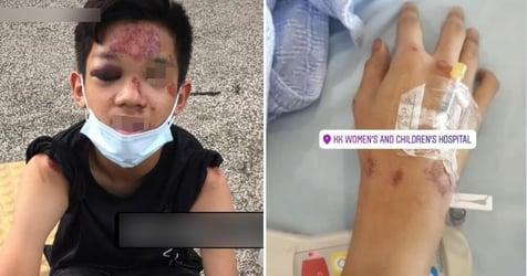 14-Year-Old Cyclist Badly Injured After Being Hit By Car, Driver Allegedly Just Drove Off