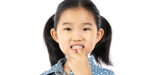 Did You Spot White Marks On Your Child's Teeth? Here's Why You Should Be Concerned
