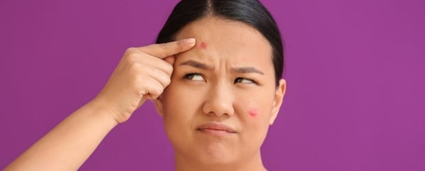 What Your Pimples Say About Your Body And Health
