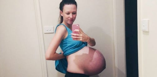 Her baby bump photo went viral, but for all the wrong reasons