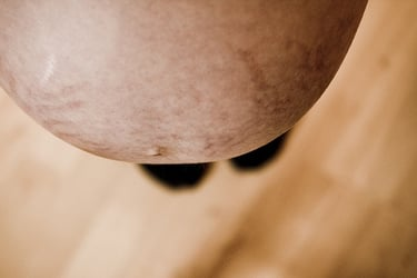 How to reduce stretch marks? Munch sprouts