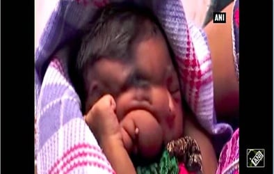 Baby born with trunk dubbed Lord Ganesha