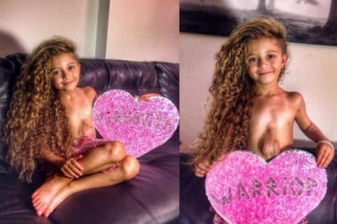 6-year-old girl's heart beats outside her body..it's a miracle
