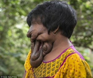 Meet the 21-year-old woman who was born with no face!