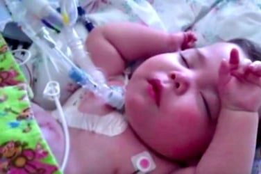 Nurse adopts baby with serious birth defect she cared for in the hospital