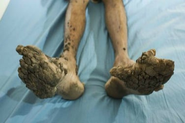 A rare illness is causing this boy's skin to turn into stone