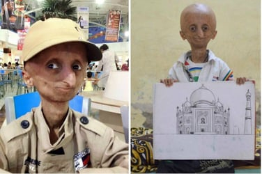 Nihal Bitla, the face of Progeria in India, passes away at 15
