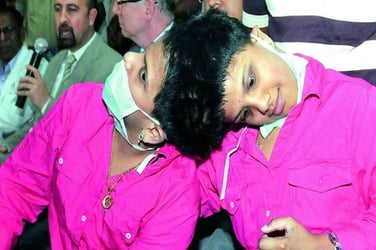 Parents unwilling to take conjoined twins home, asks govt help