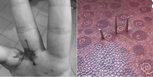 Girl hurt by 'protruding staples' on bus seat