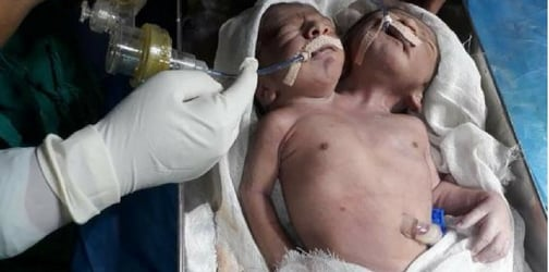 Maharashtra: 'One-in-a-million' twins born with two heads and a single torso