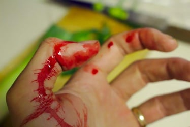 """""""I neglected a minor cut and had to undergo surgery after a month..."""""""