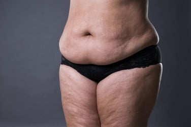 7 unimaginable reasons that could be behind your weight gain!