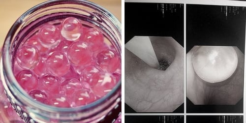 Mum Warns Of Danger After Toddler Ends Up In Hospital For Swallowing Water Beads