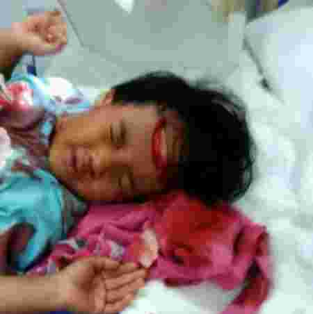 Father-daughter bonding ends in accident leaving child's skull exposed